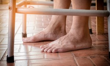 What Causes Feet to Swell in Older Adults?