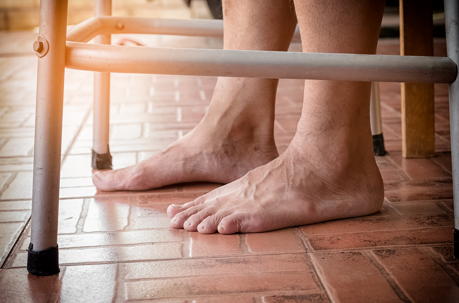 How to Cope with Ankle Swelling in a Senior with COPD